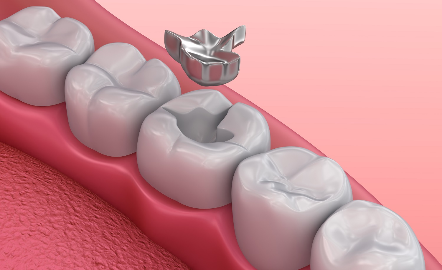 What To Look For When Changing Your Silver Fillings In Culver City